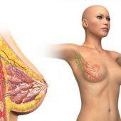 Отзывы о лечении мастопатии и мастита