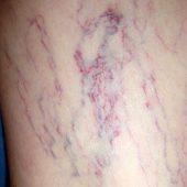 Отзывы о лечении варикоза вен