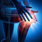 Отзывы о лечении артрита и артроза